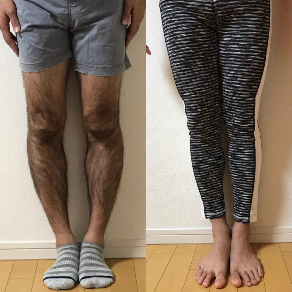 O 脚 改善 O脚の改善方法で最も効果があったのは?まとめ10選【全体験】|みなろ...